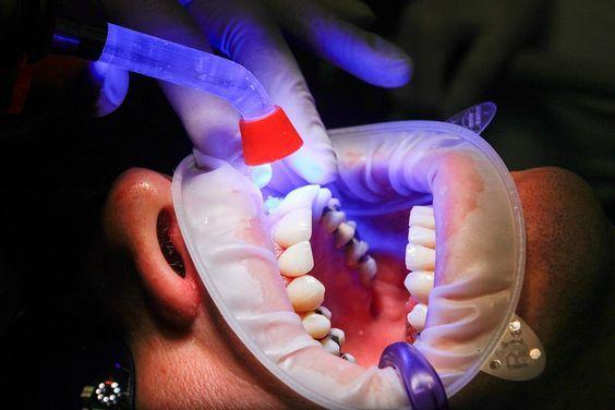 Pediatric Dentist That Accept Medicaid Near Me