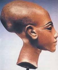 Crânes en forme d'oeuf