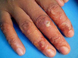 Obat bintik bening berair gatal di jari tangan