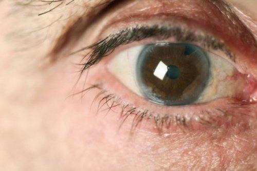Comment prévenir le glaucome de manière naturelle