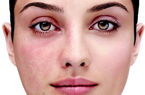Simple Skin Care Tips To Apply Often