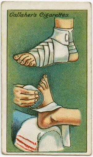 0-brouillon 1-Douleurs musculaires