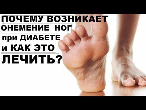 Онемение рук и ног при диабете