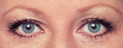 Beauté 1976