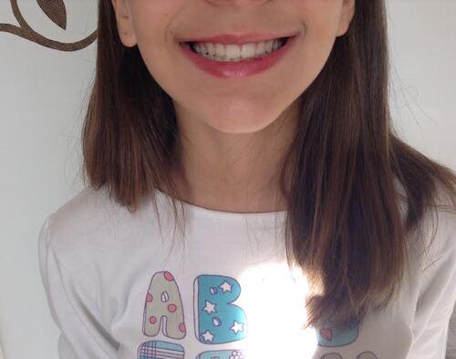 Education fonctionnelle : pour de belles dents