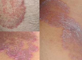 obat jamur kulit pada selangkangan dan kemaluan wanita yang sudah parah di apotik