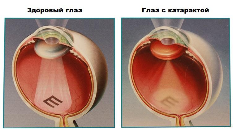 Больному диабетом замена глазного хрусталика