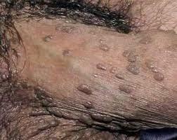 Obat Untuk Mengatasi Gejala Penyakit Sipilis Bintik Bintik Pada Penis