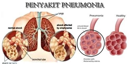 Apakah Penyakit Paru Paru Basah Dapat Di Sembuhkan