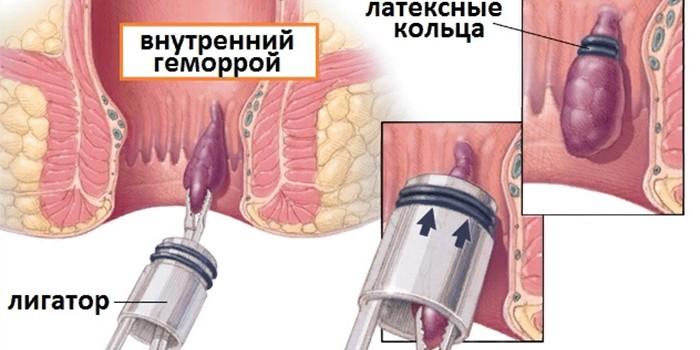 Стоимость лечения геморроя киев