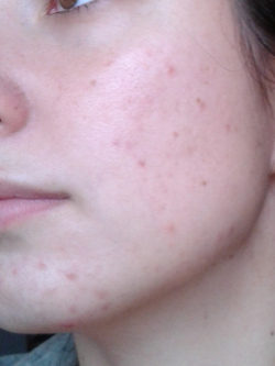 Décembre 2014, Blog Beauté, Acné, Cicatrices, Laeti Beauty, Soins, Routine, Visage