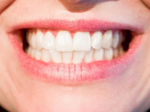 Une belle dentition.