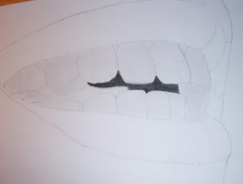 Pas à Pas Dents 8