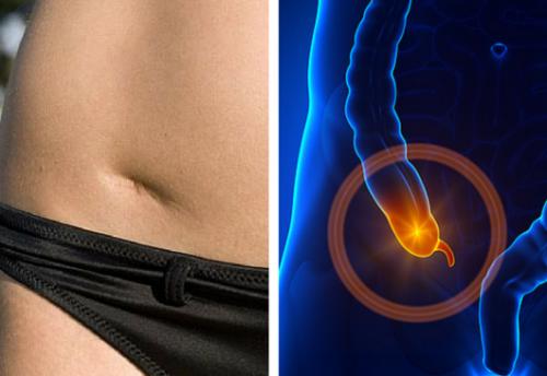 Apprenez à détecter les signaux d'une appendicite à temps