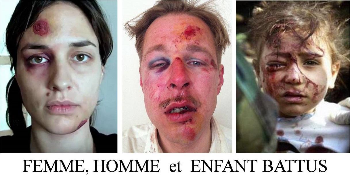 A PROPOS DES VIOLENCES FAITES AUX FEMMES.