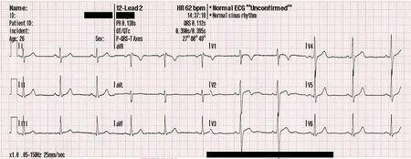L'électrocardiogramme permet de mesurer la variabilité de la fréquence cardiaque.