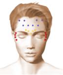 Le traitement des rides : le Botox