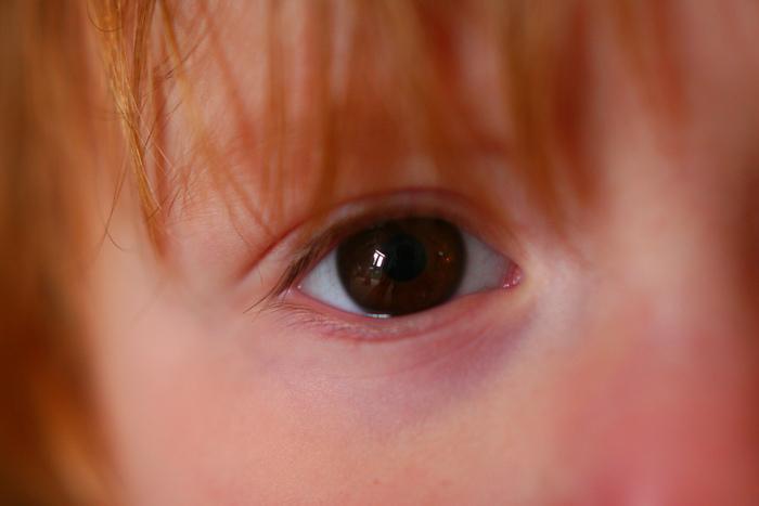 La Cataracte -  Par Julie Barbeau Capruciu, B.A. NDA -