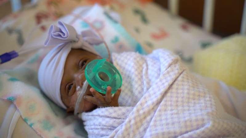 """Californie: né à 245 grammes, le plus petit bébé du monde a quitté l'hôpital """"sain et sauf"""""""