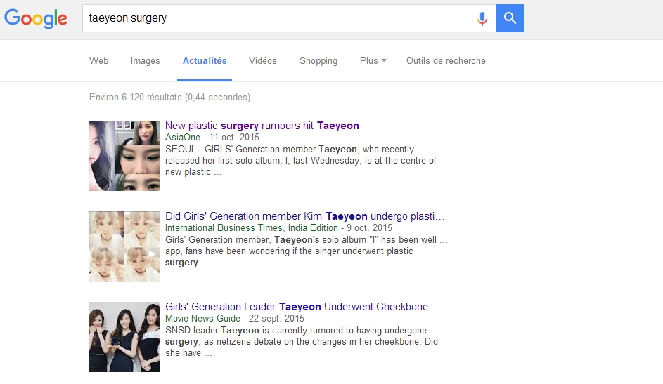 Les rumeurs de chirurgies esthétique a propos de Taeyeon sont-elles vraiment fondées ?