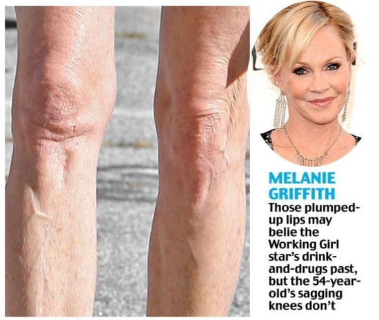 saggy_knees_show_celebs_true_age_640_03