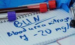 Informasi Tentang Pemeriksaan Fungsi Ginjal Yang Perlu Anda Tahu