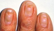 0-Infos Ongles bizarres 3-stries-fissures