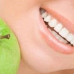 Dents