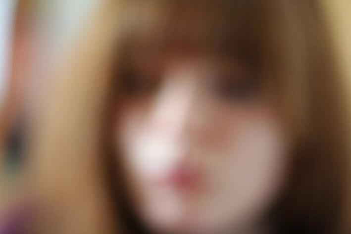 """Résultat de recherche d'images pour """"myopie"""""""
