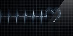 Électrocardiogramme.