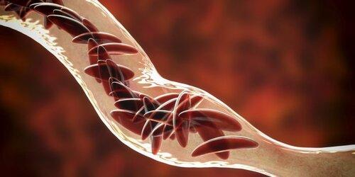 Douleur drépanocytose
