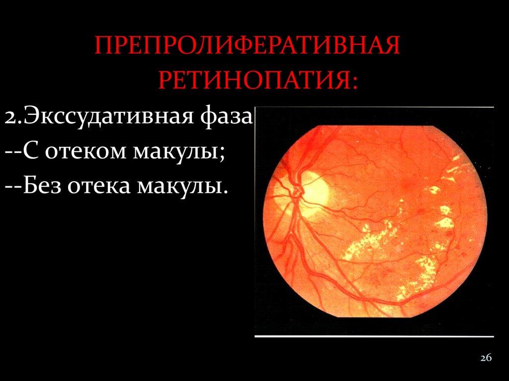 Диабетическая препролиферативная ретинопатия васкулярная фаза