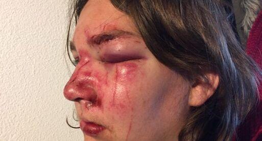Stéphanie a été frappée au visage alors qu'elle était à terre./Photo DR