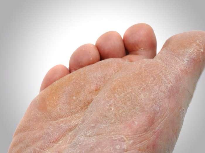 Сахарный диабет синюшность ног лечение