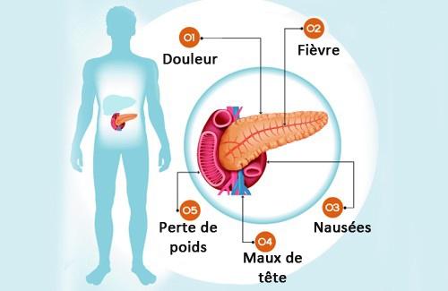 Le pancréas et ses problèmes : 6 symptômes