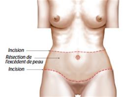 La chirurgie de la paroi abdominale et dorsale: Le body lift