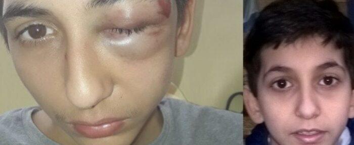 VITE UNE AUTRE FRANCE CELLE-CI N'EST PAS LA MIENNE !!!  Gabriel, 14 ans tabassé par les policiers !