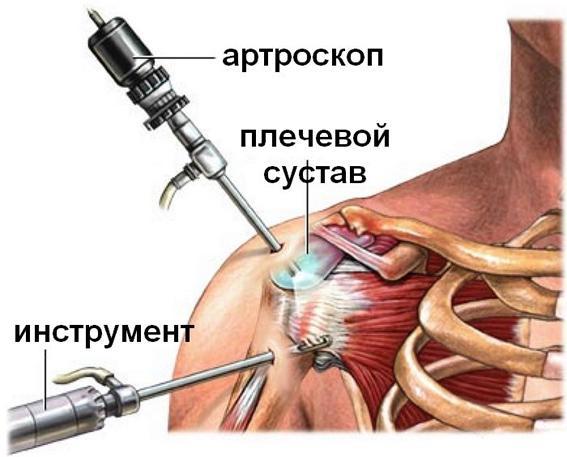 Может болеть плечевой сустав при сахарном диабете