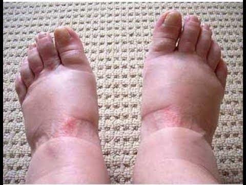 Снятие отека на ногах при диабете