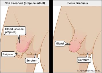 Une comparaison de pénis avant et après circoncision