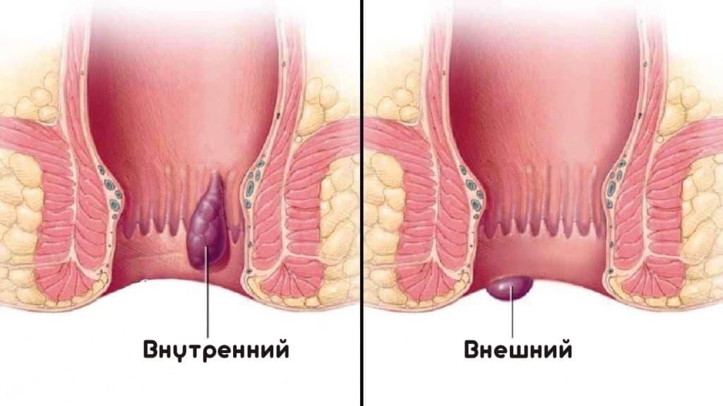Сколько стоит операция по удалению геморроидальных узлов в спб