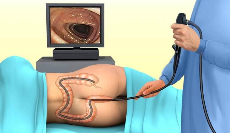 Фкс кишечника при геморрое
