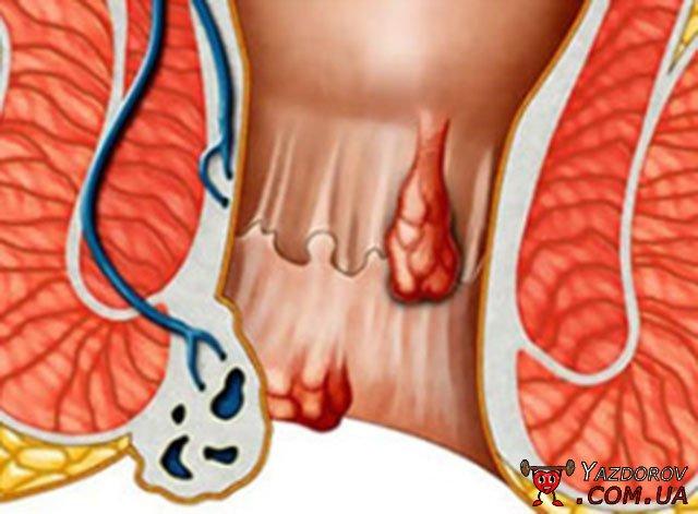 Метод сергея кондакова при лечении геморроя