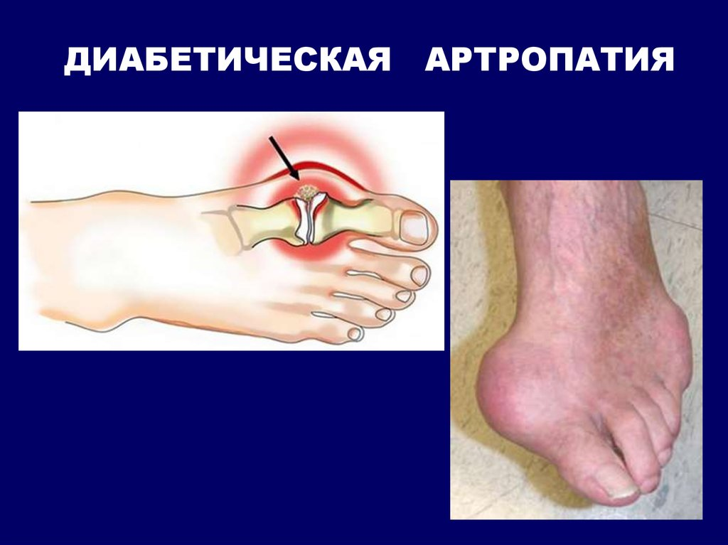 Диабет артропатия