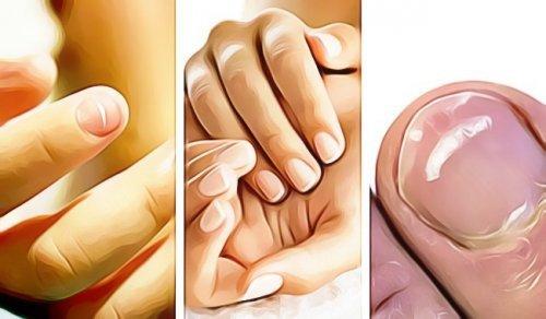 ongles deformes pouce mains