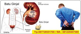 resep obat tradisional batu ginjal yang alami anjuran dokter