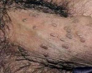 OBAT KUTIL KELAMIN DI APOTIK CARA PEMBERSIHAN VIRUS HPV