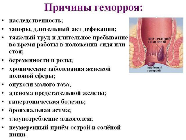 Внутренний геморрой у мужчин симптомы и лечение