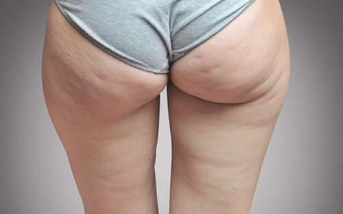 la cellulite et la rétention de liquides