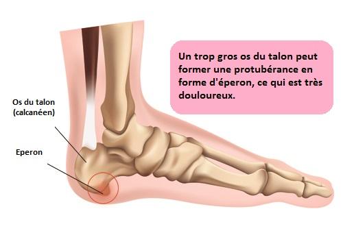 douleur sous le pied talon